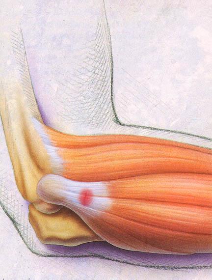 tennis elbow 2013 manual